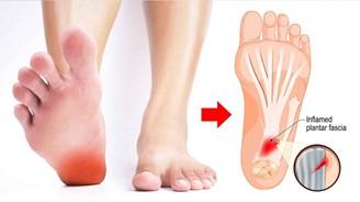 足底筋膜炎,足底刺痛,腳底痛,足底筋膜舒緩