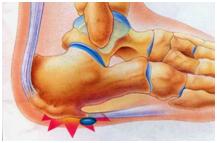 物理治療,下背痛,肩頸痠痛,頸椎、腰椎神經壓迫,運動傷害,五十肩治療,足底筋膜炎,骨科術後復健,孕後骨盆調整,運動按摩,儀器治療,矯正鞋墊