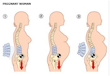 產後骨盆變大,產後骨盆矯正,產後骨盆運動,孕後骨盆調整