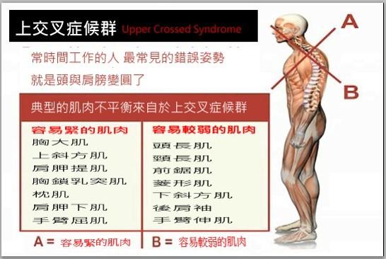 肩頸痠痛,肩頸痠痛按摩,肩頸僵硬,肩膀痠痛,肩頸緊繃